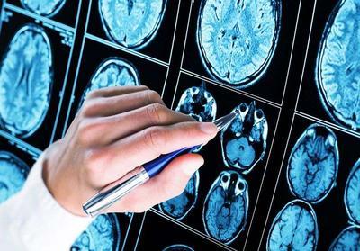 患上癫痫如何诊断